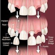 Best Dental Implants in Hyderabad - Dental Implants Cost in Hyderabad