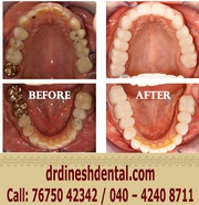 Best Root Canal Treatment In Secunderabad | Dinesh's Dental Paradise