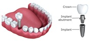 Retain Your Smile at the Best Tooth Implant Cost in India