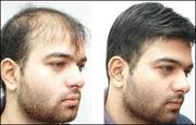 About Us - No.1 Hair & Skin Clinic in Vijayawada - Alpha