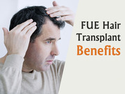 Best Hair Transplant in Hyderabad | Hitech City