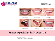 Braces | Specialist in Hyderabad | Best Dentist | VistaDent