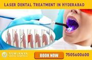 Laser Dental Treatment in Hyderabad - Dental Clinic in Himayat Nagar