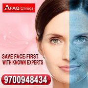 Best skin treatment with affordable cost and guaranteed results