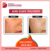 Best skincare clinic in Hyderabad