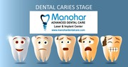 Manohar dental care teeth whitening doctor in vizag