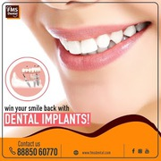 Best Dental Clinic in KPHB,  Kukatpally,  Hyderabad,  India-8886643228